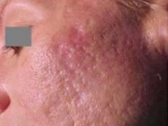 Шрамы от угревой сыпи на лице