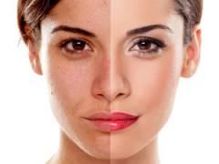 Улучшение цвета лица