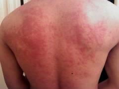 Уртикарная сыпь на спине