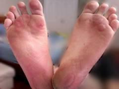 Волдыри на ступнях