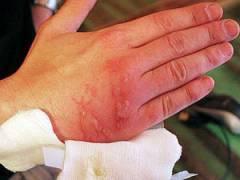 Ожог на руке