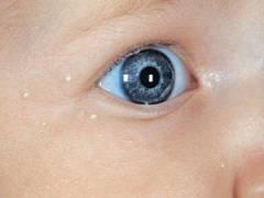 Жировики на лице у ребенка