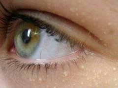 Миллиумы под глазами