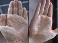 Облезание кожи на ладонях