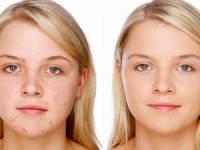 Кожа лица до лечения и после