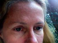 Шелушение кожи лица у девушки